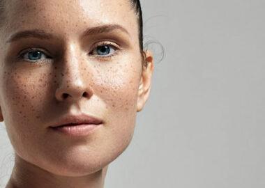 img-skin-pigmentation