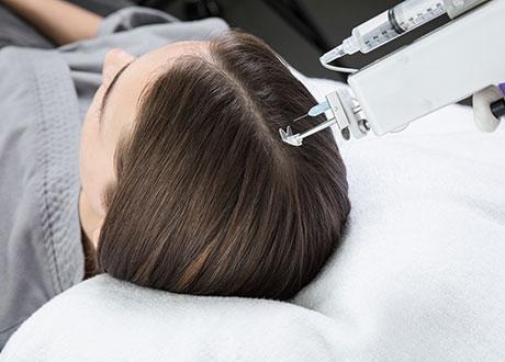 Traitement De La Chute Et De La Perte De Densite De Cheveux Chez