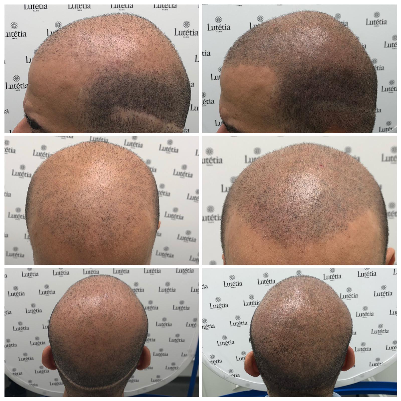 Masquer Une Perte De Cheveux Grace A La Micropigmentation De Cheveux