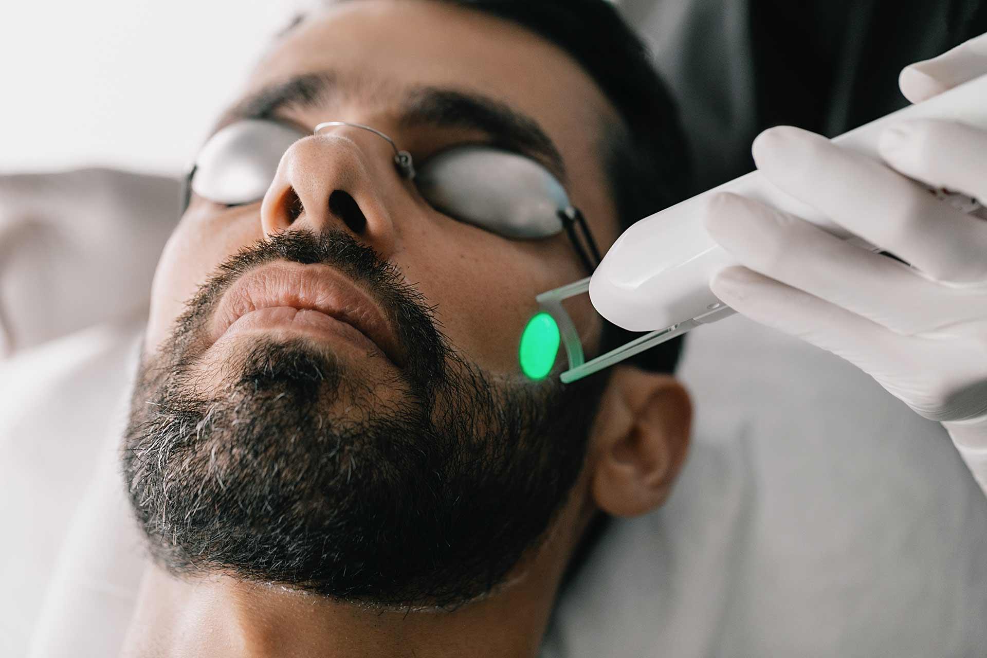 epilation laser vert