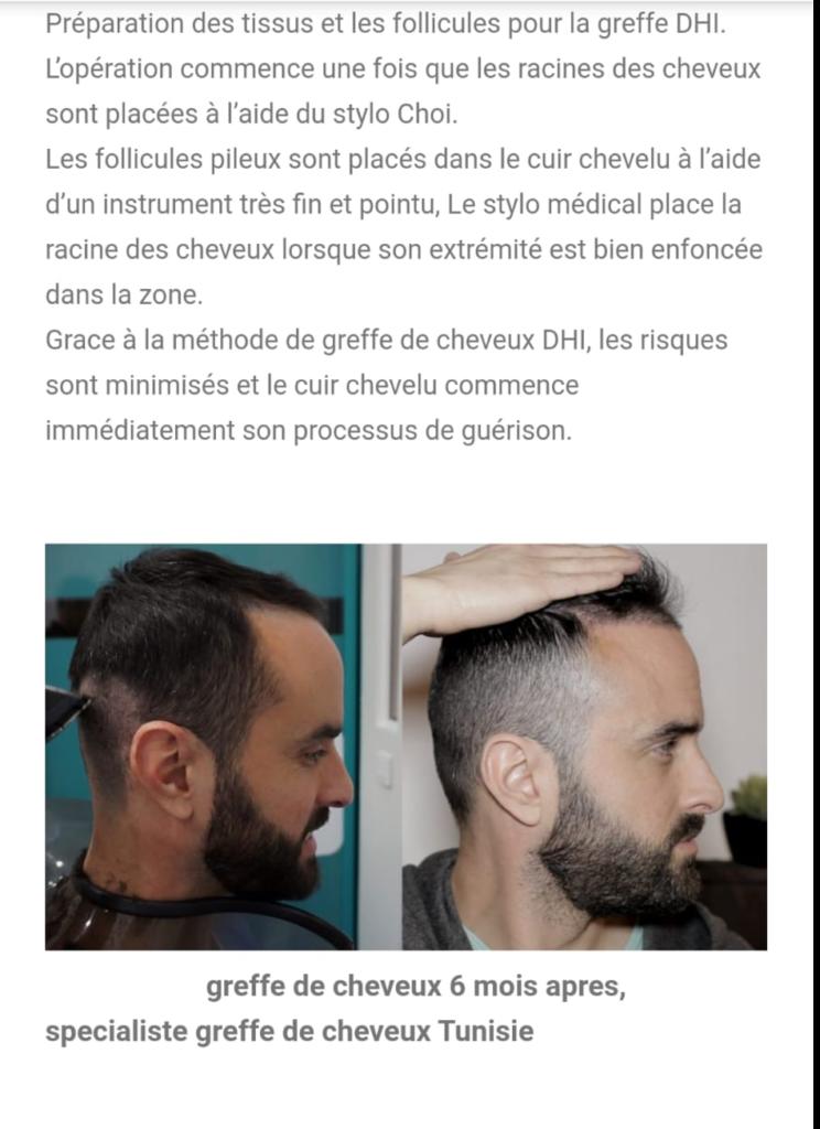 greffe de cheveux winslegue
