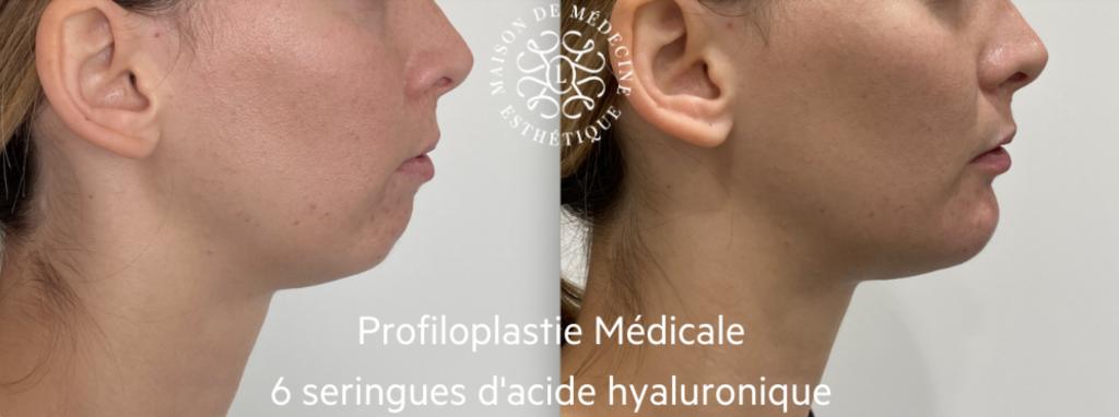 profiloplastie médicale