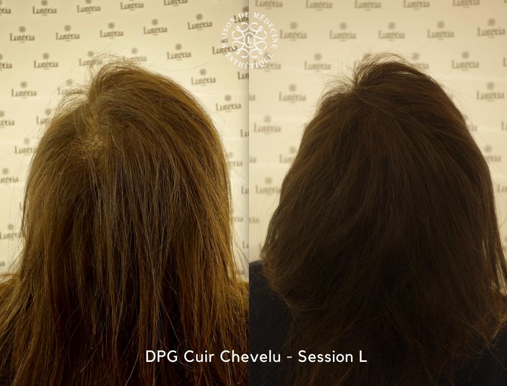 dermopigmentation femme cheveux
