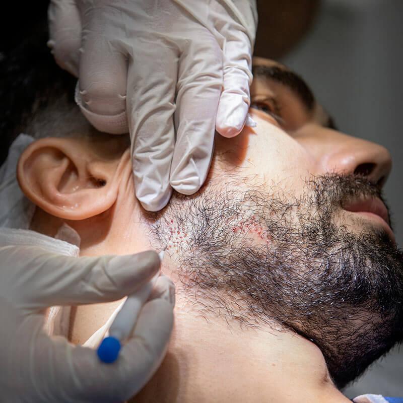 beard transplant in dubai